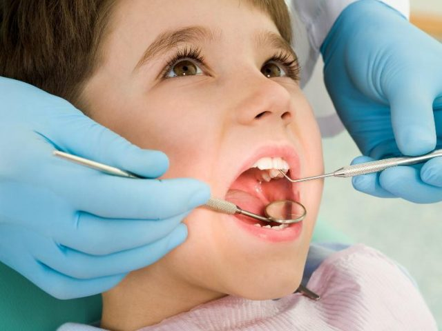 Sellado dental para evitar la caries: ¿si o no?
