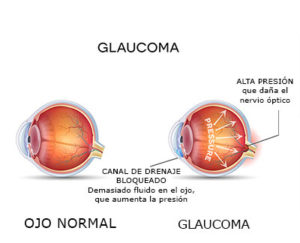 Glaucoma y Salud Bucal